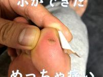 親指のウイルス性イボの写真