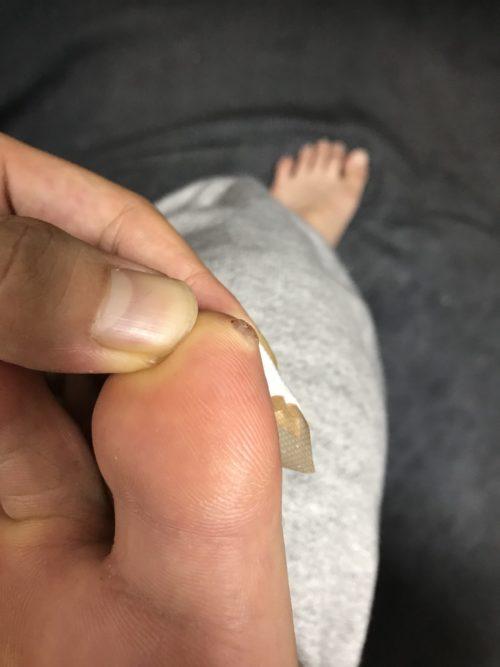 液体窒素で焼かれた足のイボ